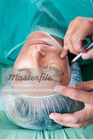 Lignes d'incision sur le visage en salle d'opération