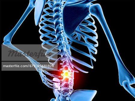Rückenschmerzen. Konzeptionelle Computer Kunstwerk eines ...