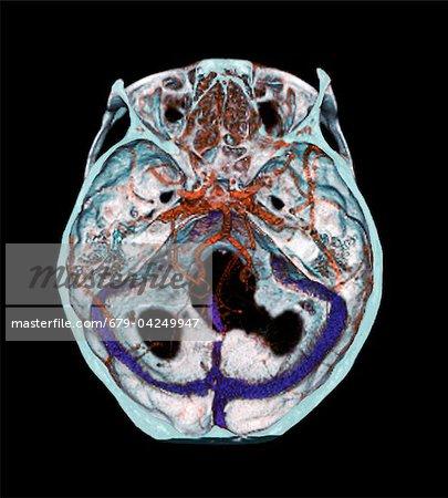 Arterien des Gehirns, 3D CT scan - Stockbilder - Masterfile ...