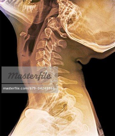 Normal erweitert Hals, Röntgen