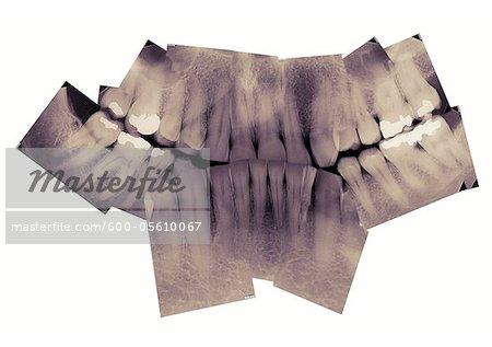 X-rays of Mature Teeth