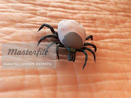 Tick (superfamily Ixodoidea) on human skin, computer artwork.