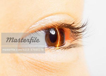 Extreme close up of laser scanning brown eye