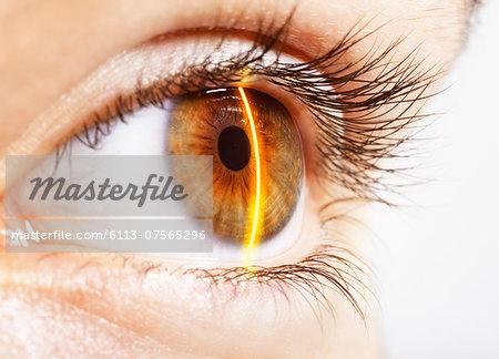 Extreme close up of laser scanning hazel eye