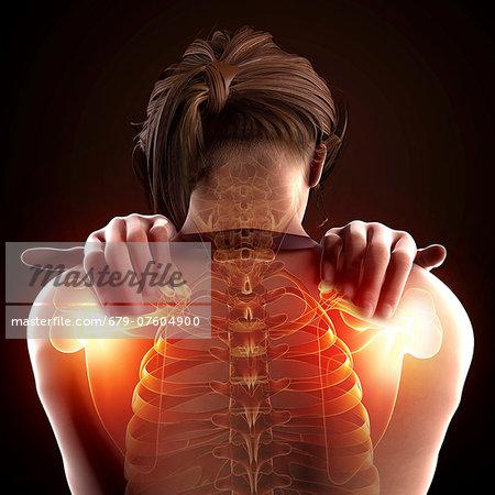 Shoulder pain, computer artwork.