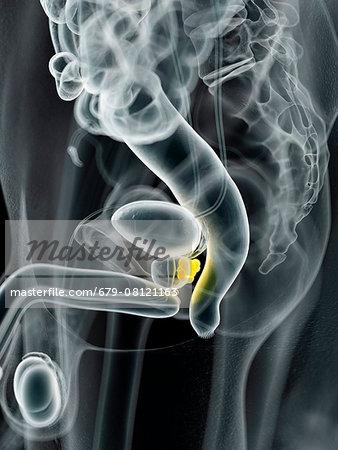 Human prostate cancer, computer illustration.