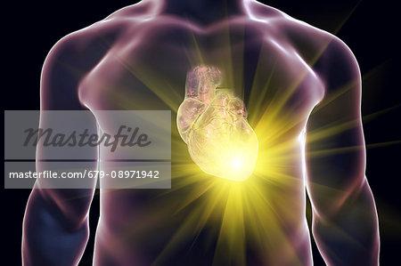 Heart attack, conceptual computer illustration.