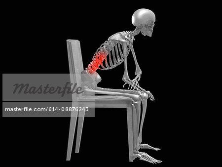 Low Back Pain Illustration Stock Photo Masterfile Premium Royalty Free Code 614 08876243