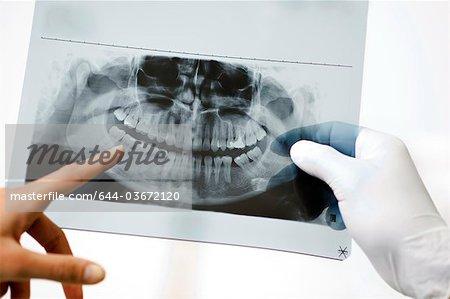 Dental panoramic xray