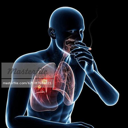 Lung cancer due to smoking, computer artwork.