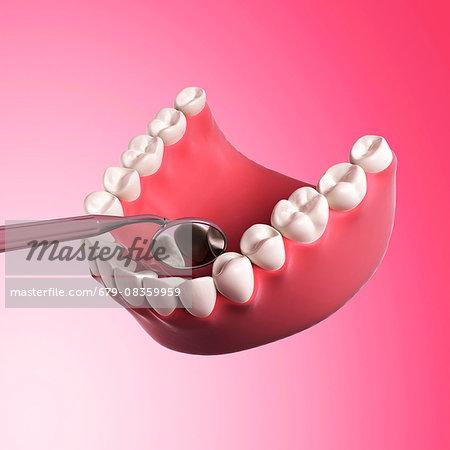 Human teeth, computer illustration,