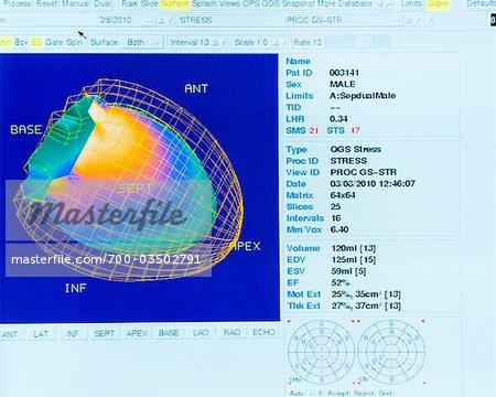 Cardiac Scan Data on Computer Display Monitor