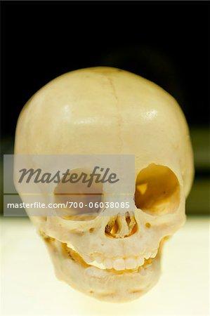 Plastinated Skull of Child