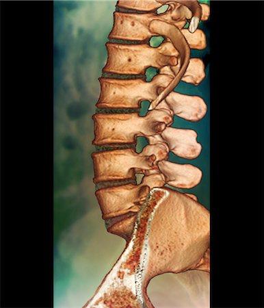 Lumbar spine profile Stock Photos - Page 1 : Masterfile